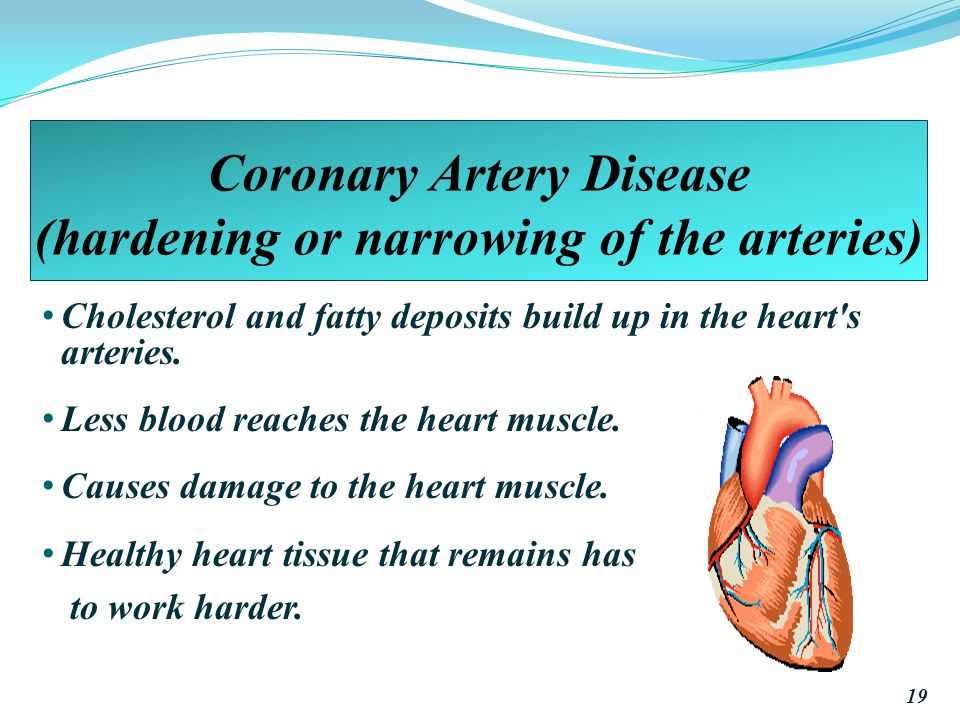 Coronary Artery Disease (hardening or narrowing of the arteries)