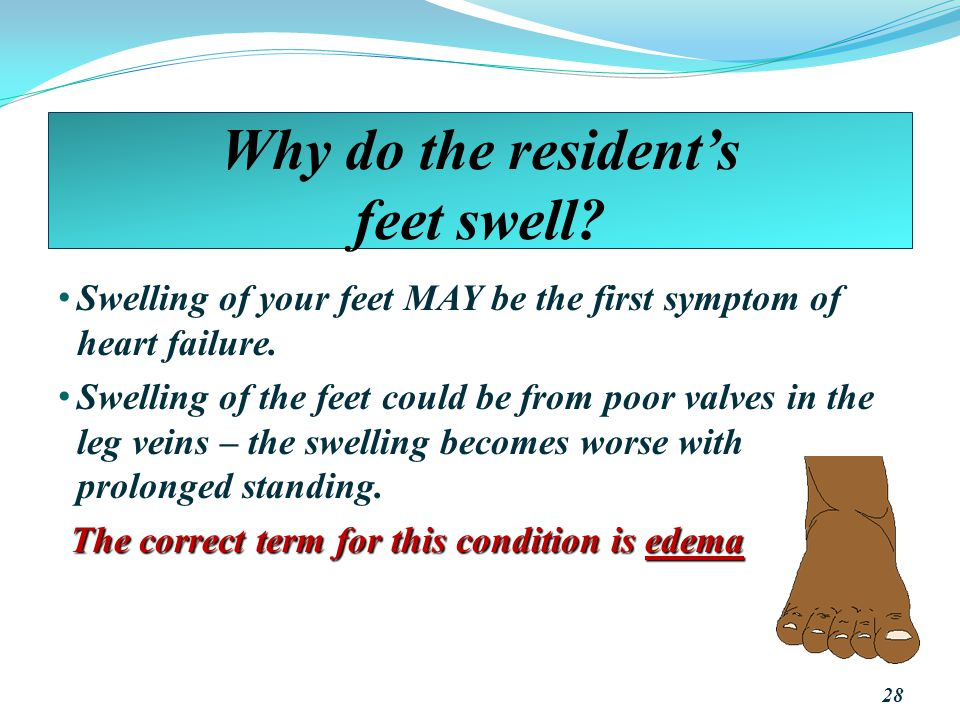 Why do the resident's feet swell