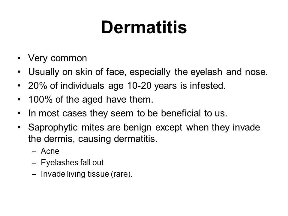 Dermatitis Very common
