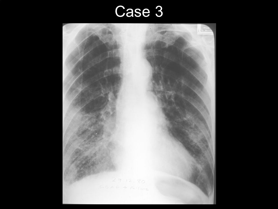 Case 3 70 M – Obese SOBOE and fatigue x 3 months No Orthopnea/PND