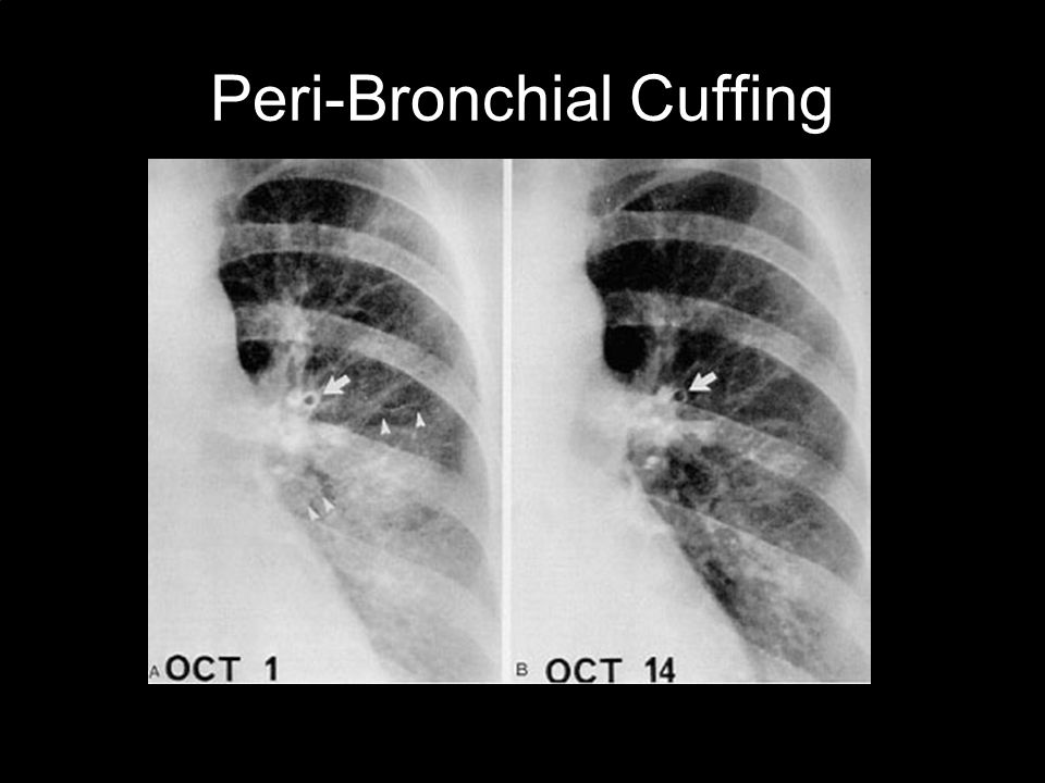 Peri-Bronchial Cuffing