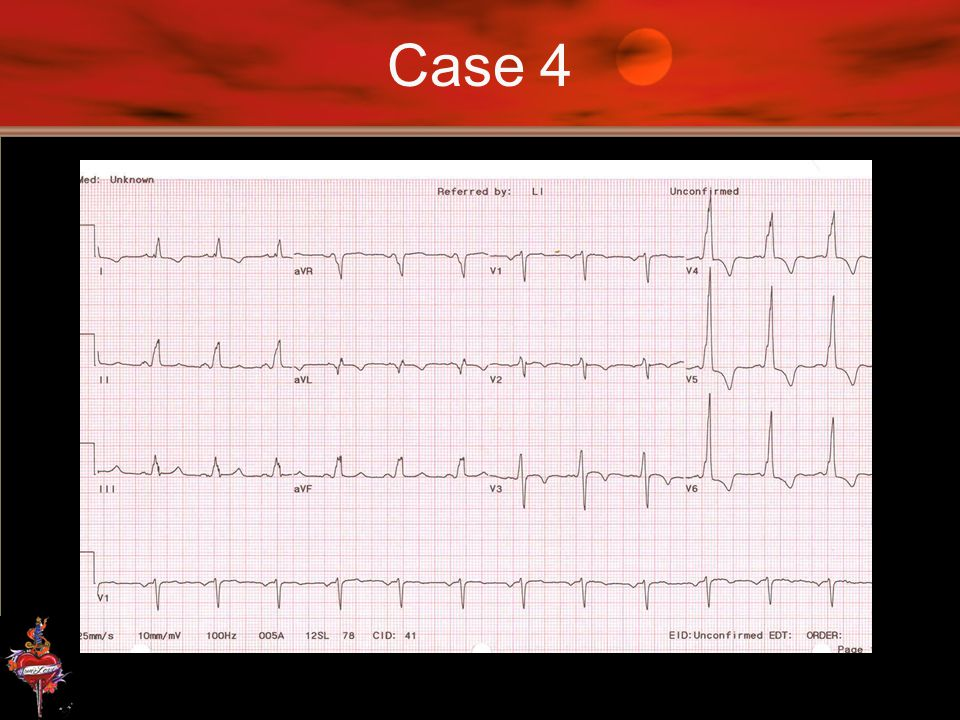 Case 4 67 M ↑SOB Visibly Distressed 96 28 200/110 75% ORA