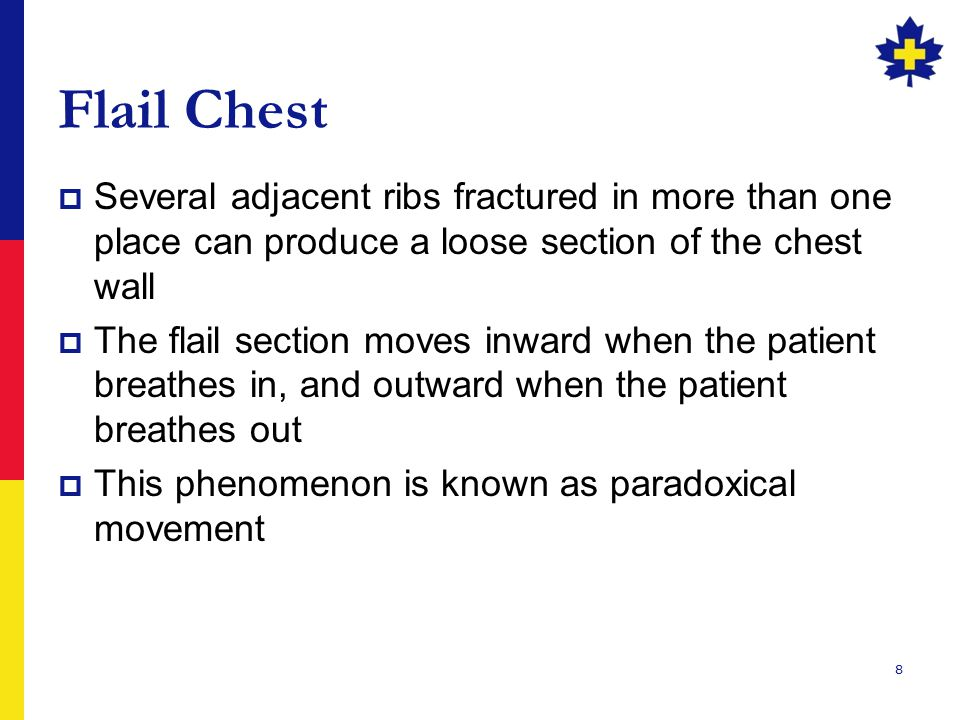 Flail Chest Several adjacent ribs fractured in more than one place can produce a loose section of the chest wall.