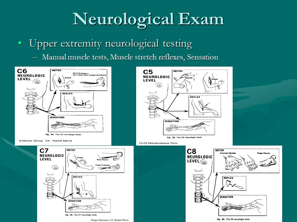 Neurological Exam Upper extremity neurological testing