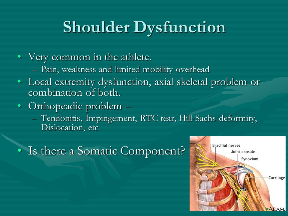 Shoulder Dysfunction Is there a Somatic Component