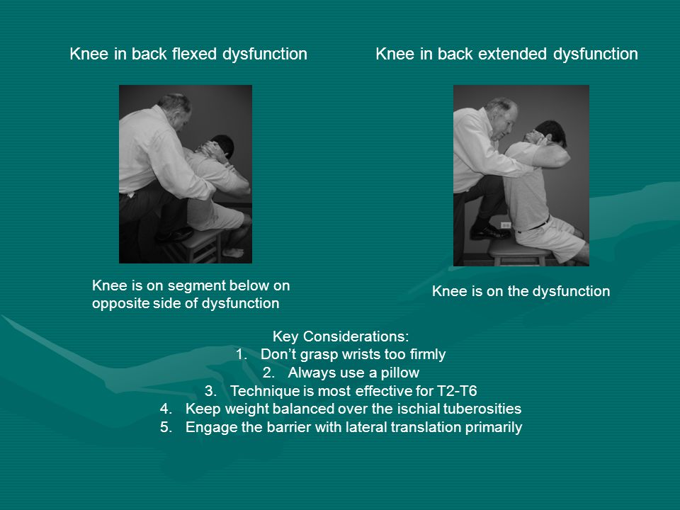 Knee in back flexed dysfunction Knee in back extended dysfunction