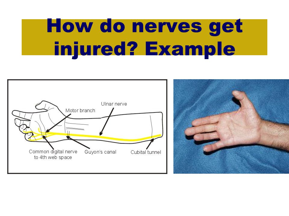 How do nerves get injured Example
