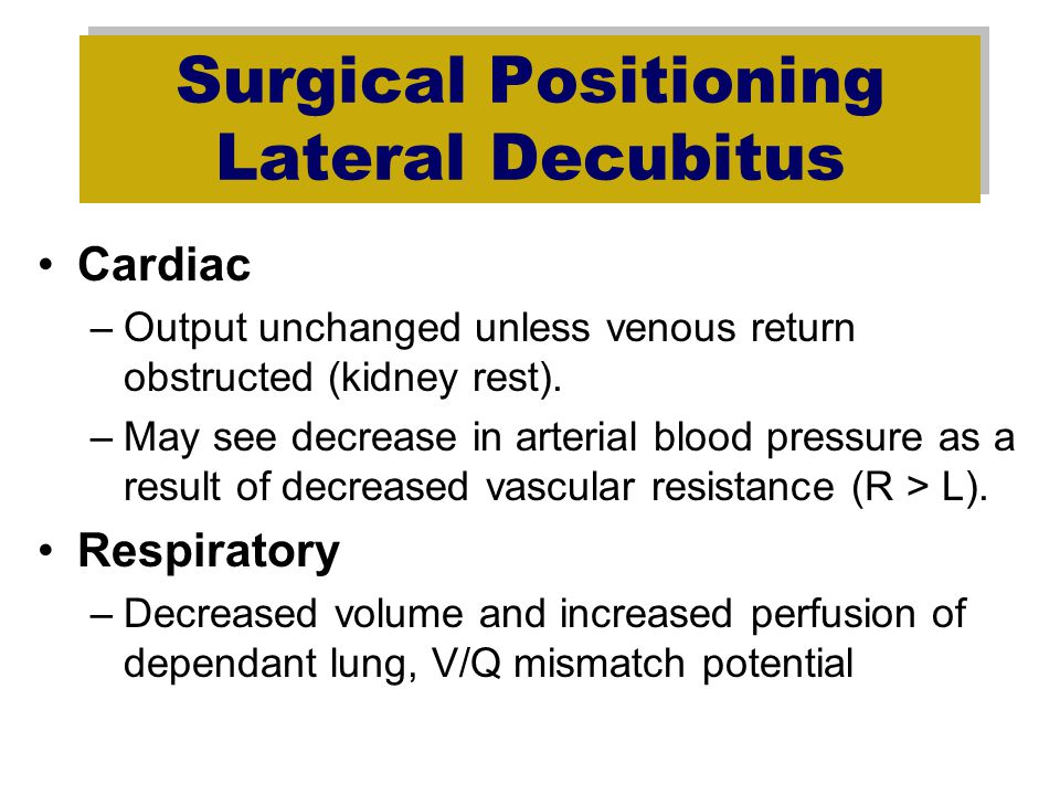 Surgical Positioning Lateral Decubitus