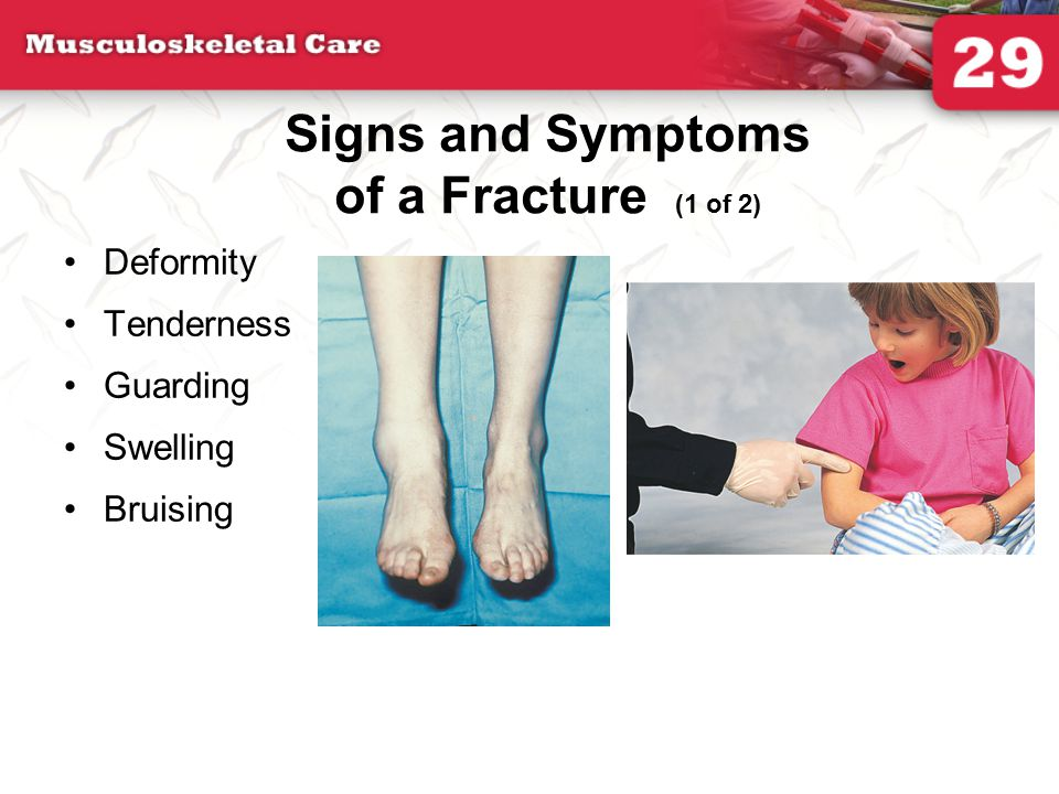 Signs and Symptoms of a Fracture (1 of 2)