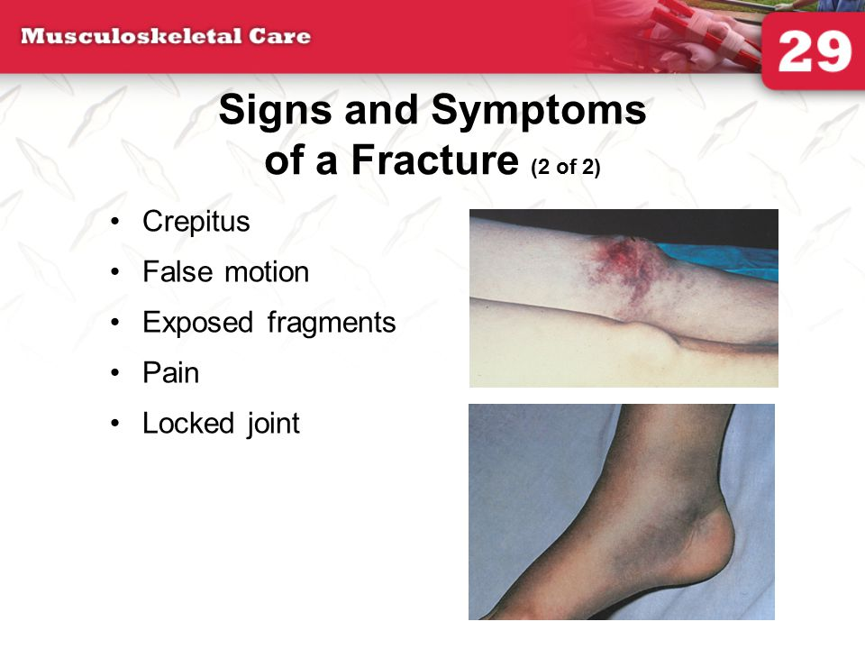 Signs and Symptoms of a Fracture (2 of 2)