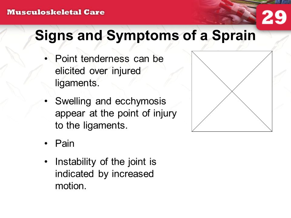 Signs and Symptoms of a Sprain