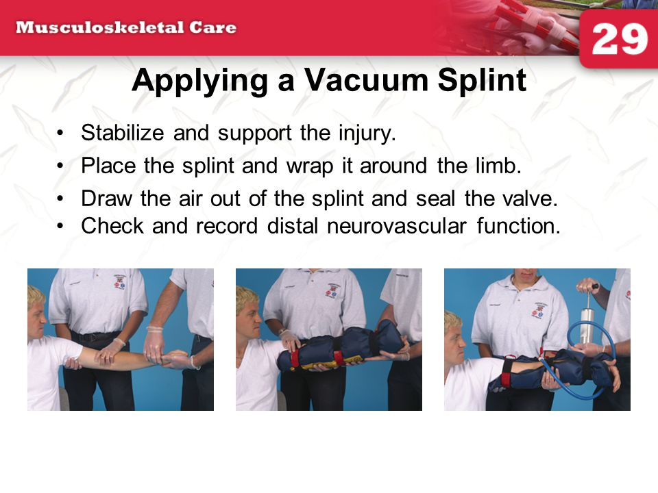 Applying a Vacuum Splint