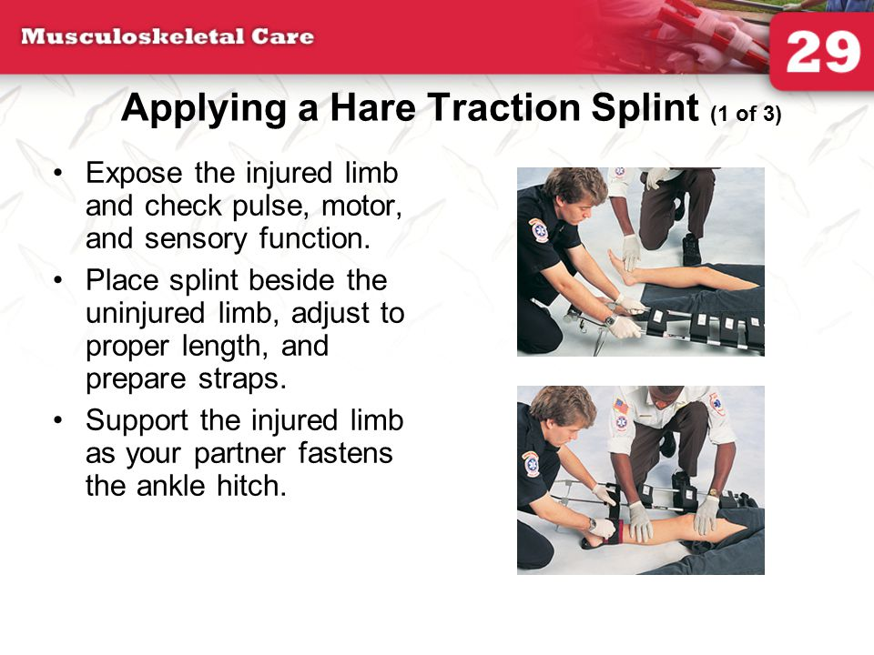 Applying a Hare Traction Splint (1 of 3)