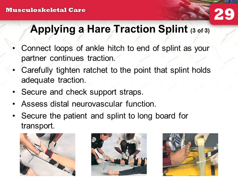 Applying a Hare Traction Splint (3 of 3)