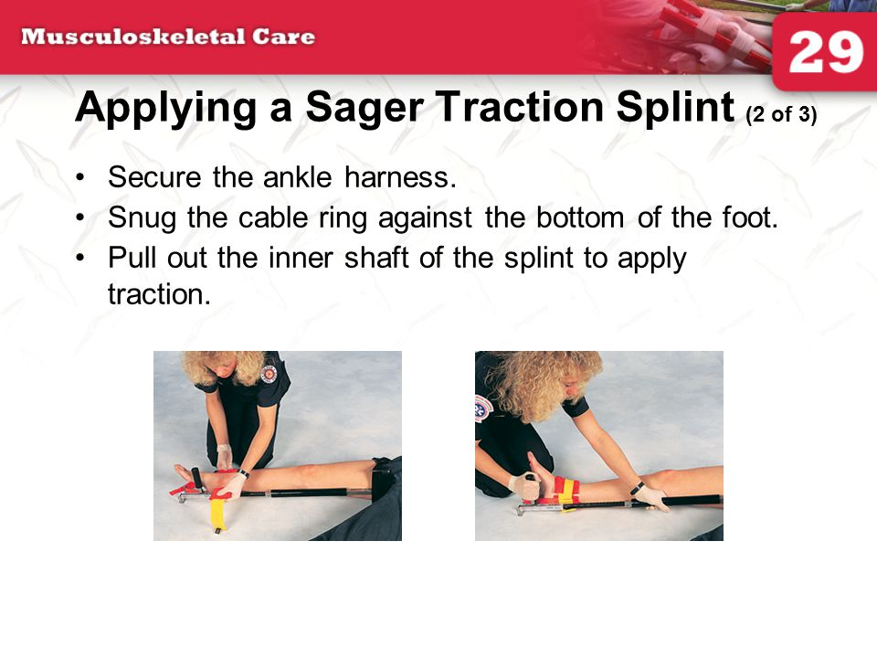 Applying a Sager Traction Splint (2 of 3)