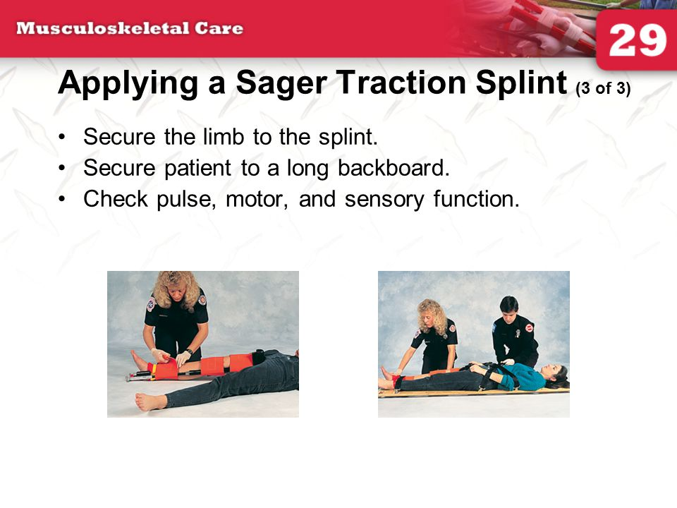 Applying a Sager Traction Splint (3 of 3)