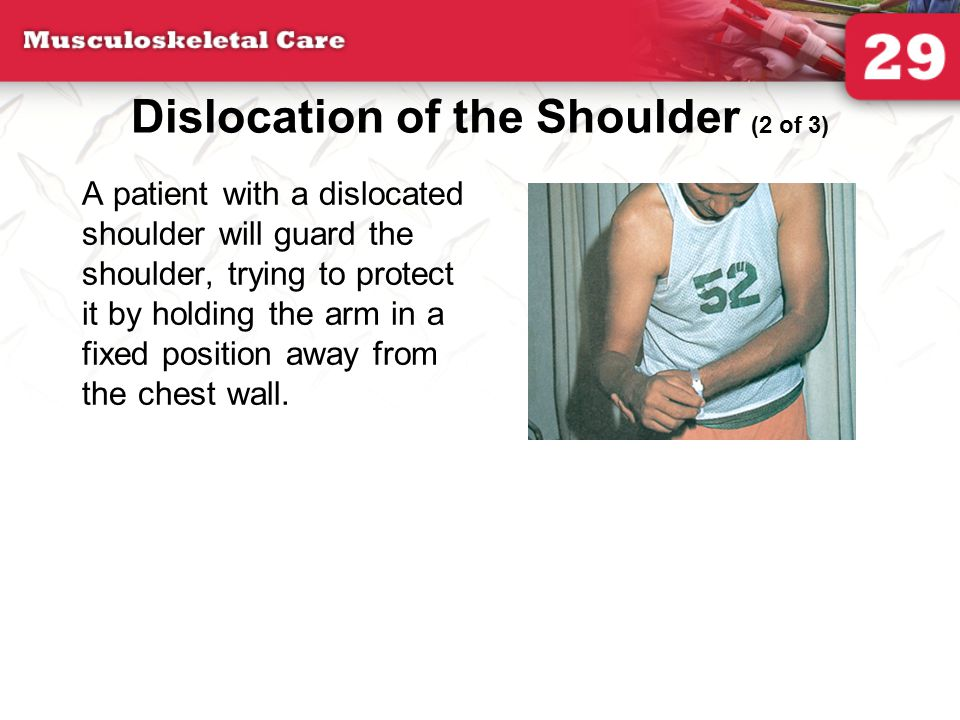 Dislocation of the Shoulder (2 of 3)