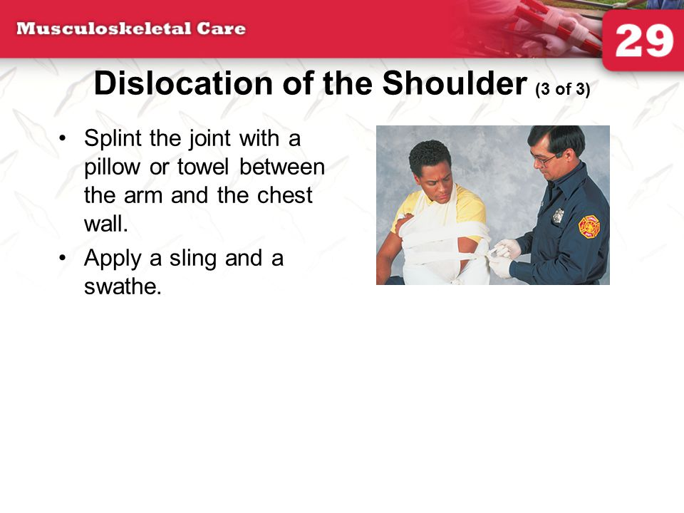 Dislocation of the Shoulder (3 of 3)