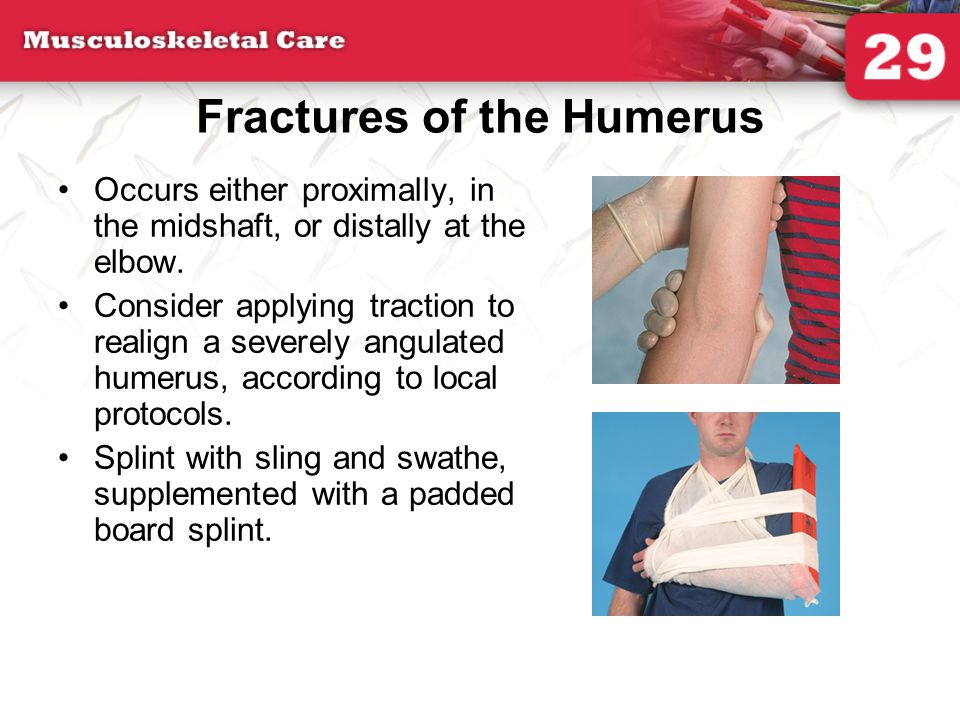 Fractures of the Humerus