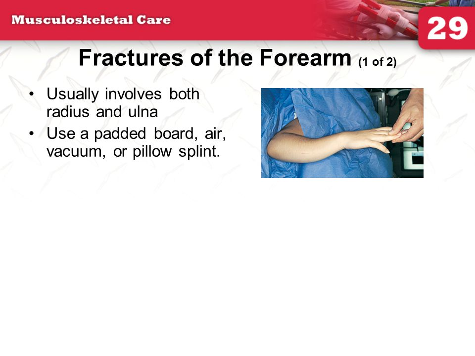 Fractures of the Forearm (1 of 2)