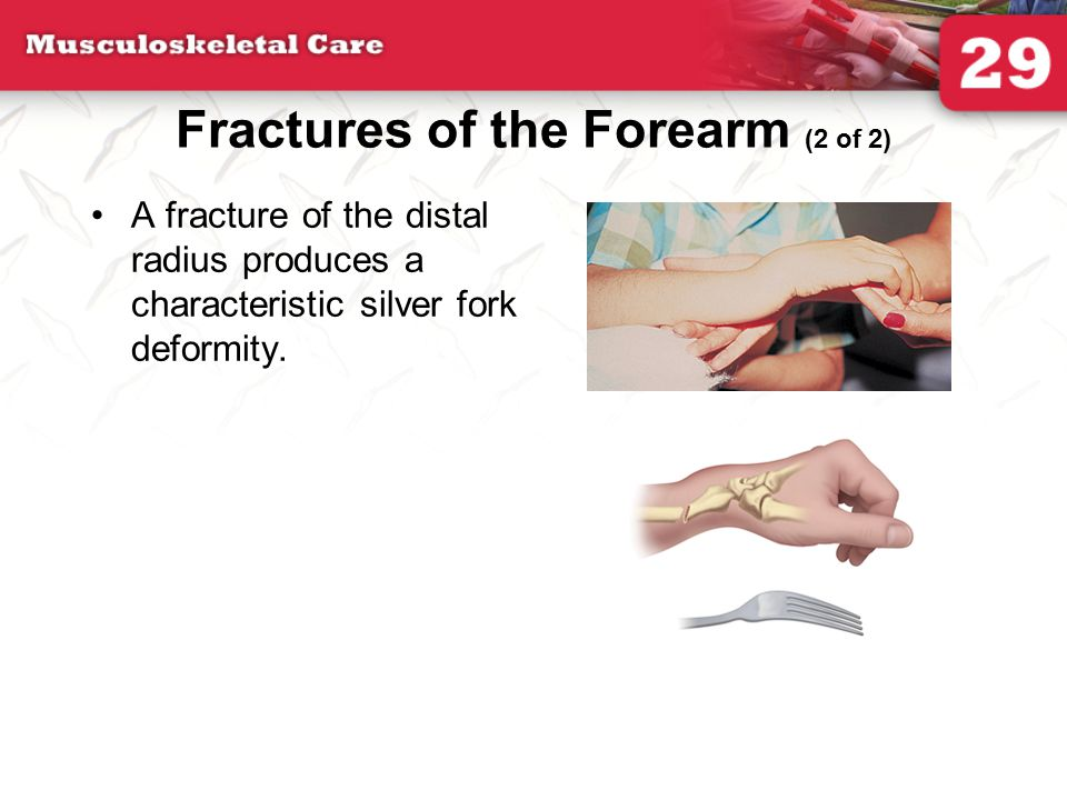 Fractures of the Forearm (2 of 2)