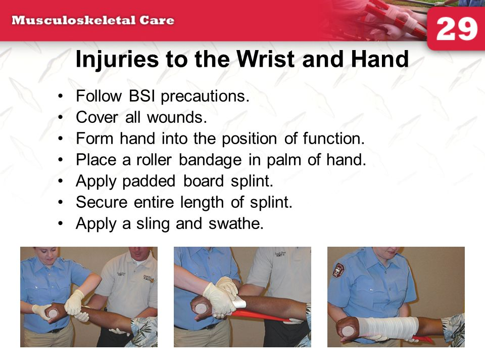 Injuries to the Wrist and Hand