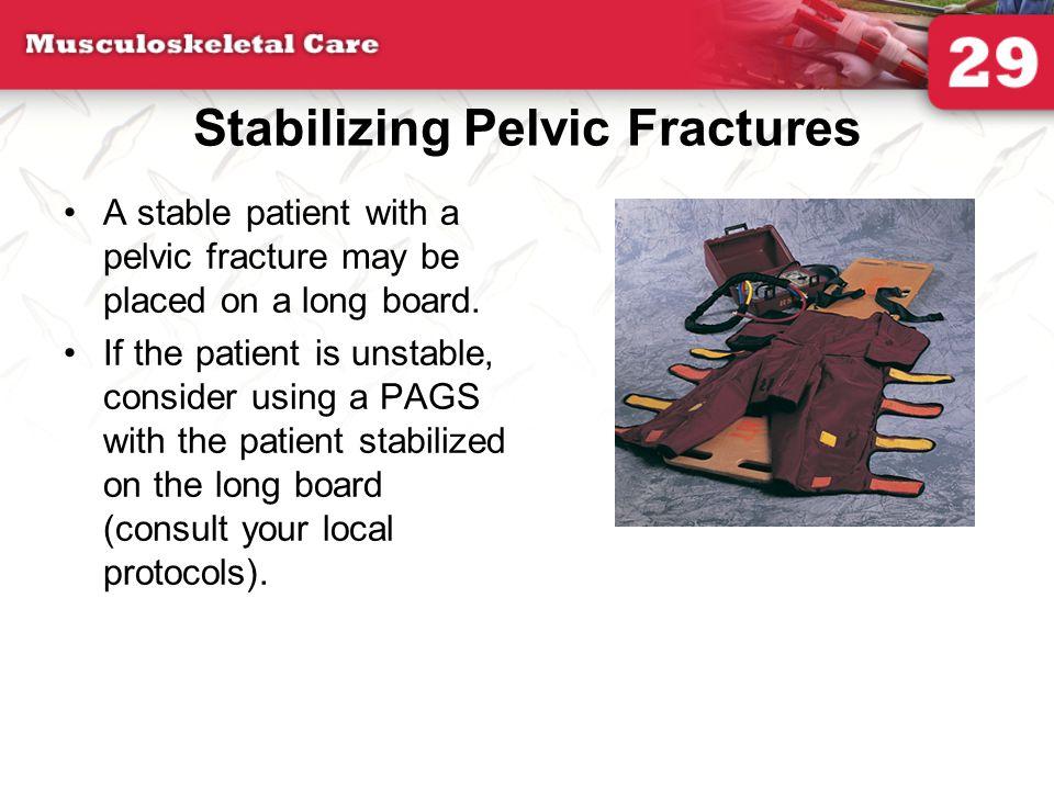 Stabilizing Pelvic Fractures