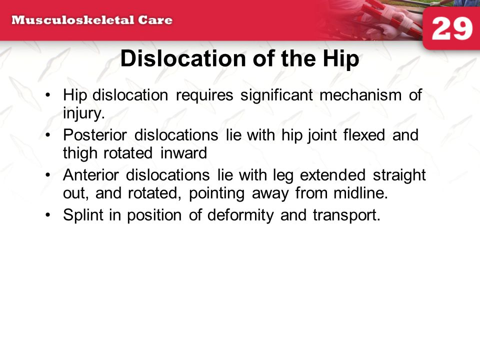 Dislocation of the Hip Hip dislocation requires significant mechanism of injury.