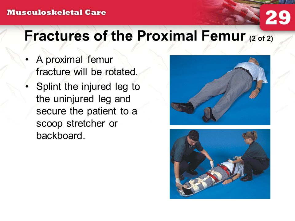 Fractures of the Proximal Femur (2 of 2)