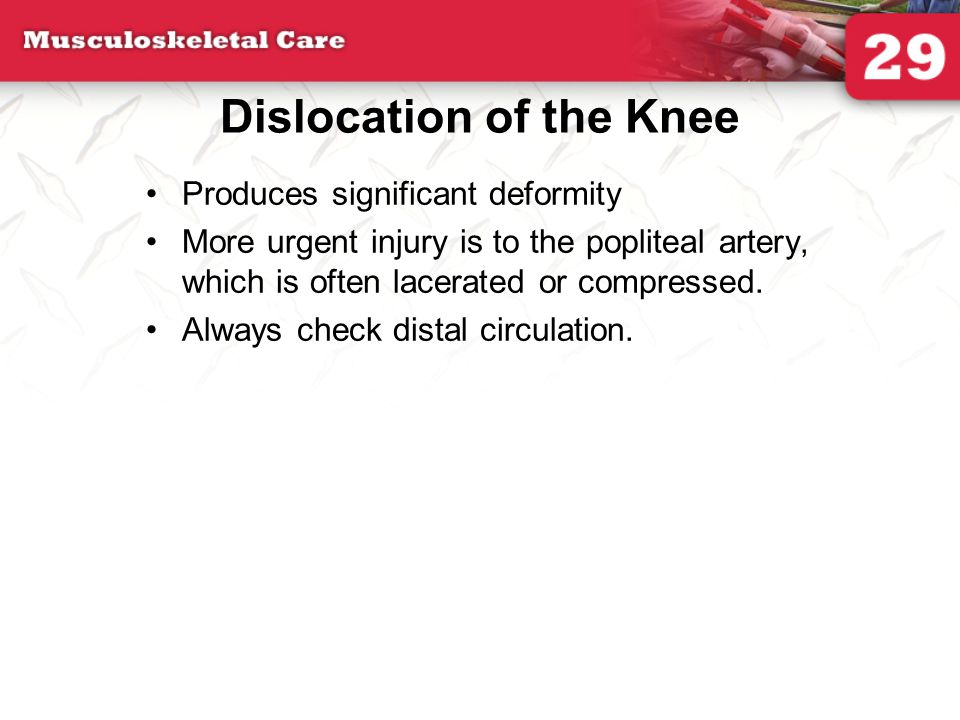 Dislocation of the Knee
