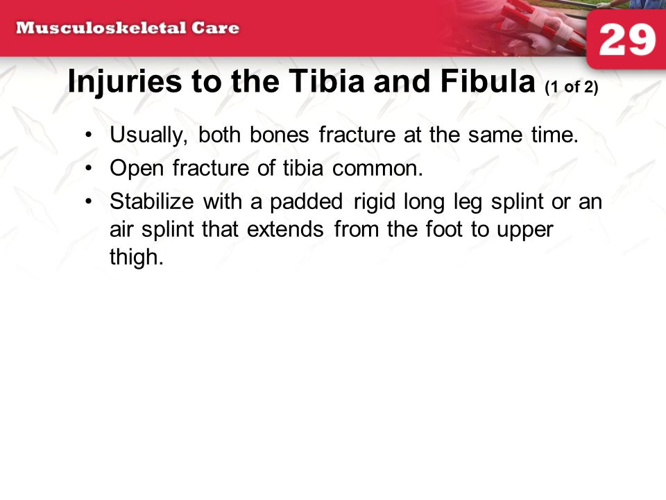 Injuries to the Tibia and Fibula (1 of 2)