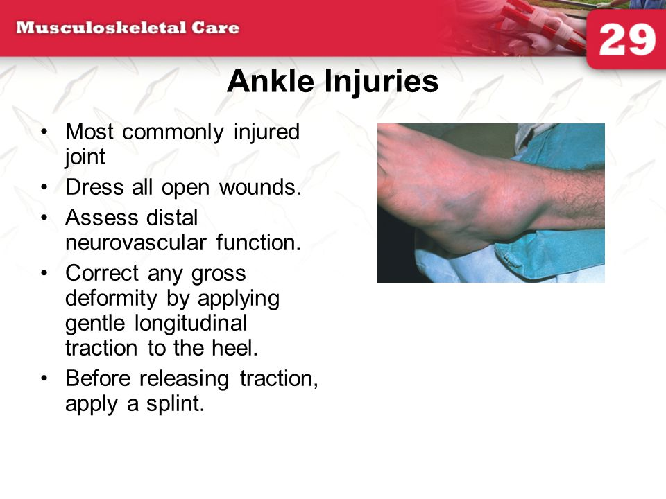 Ankle Injuries Most commonly injured joint Dress all open wounds.