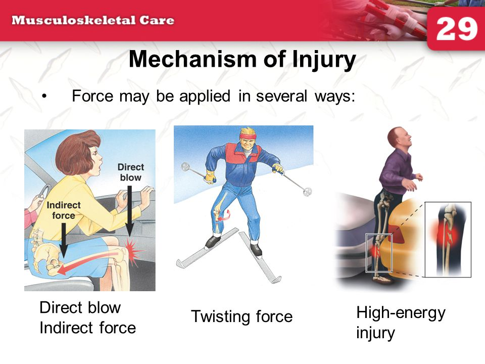 Mechanism of Injury Force may be applied in several ways: Direct blow