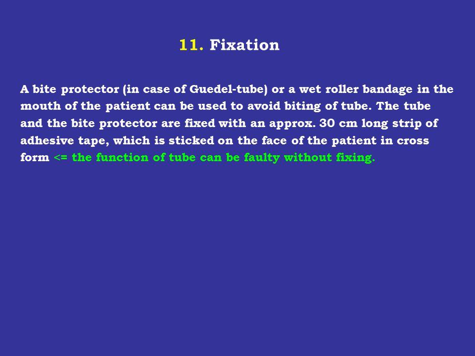 11. Fixation