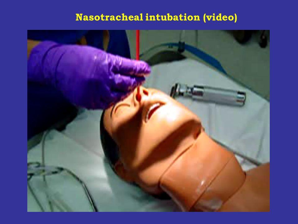 Nasotracheal intubation (video)