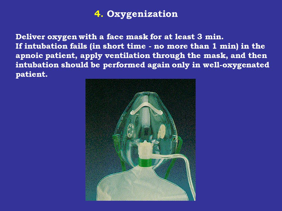 4. Oxygenization Deliver oxygen with a face mask for at least 3 min. If intubation fails (in short time - no more than 1 min) in the.
