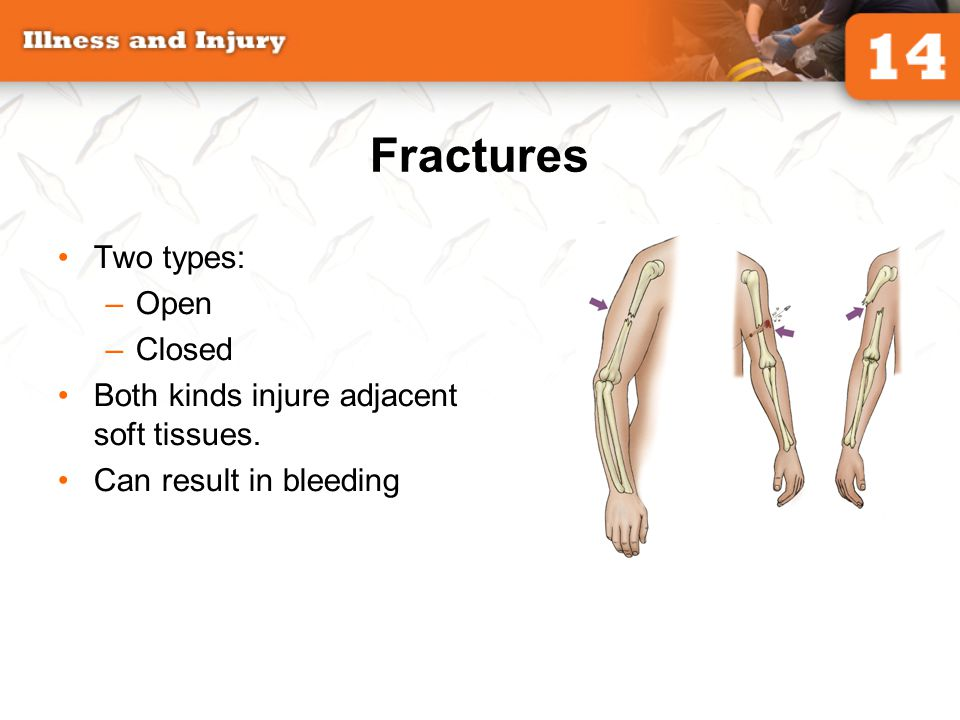 Fractures Two types: Open Closed