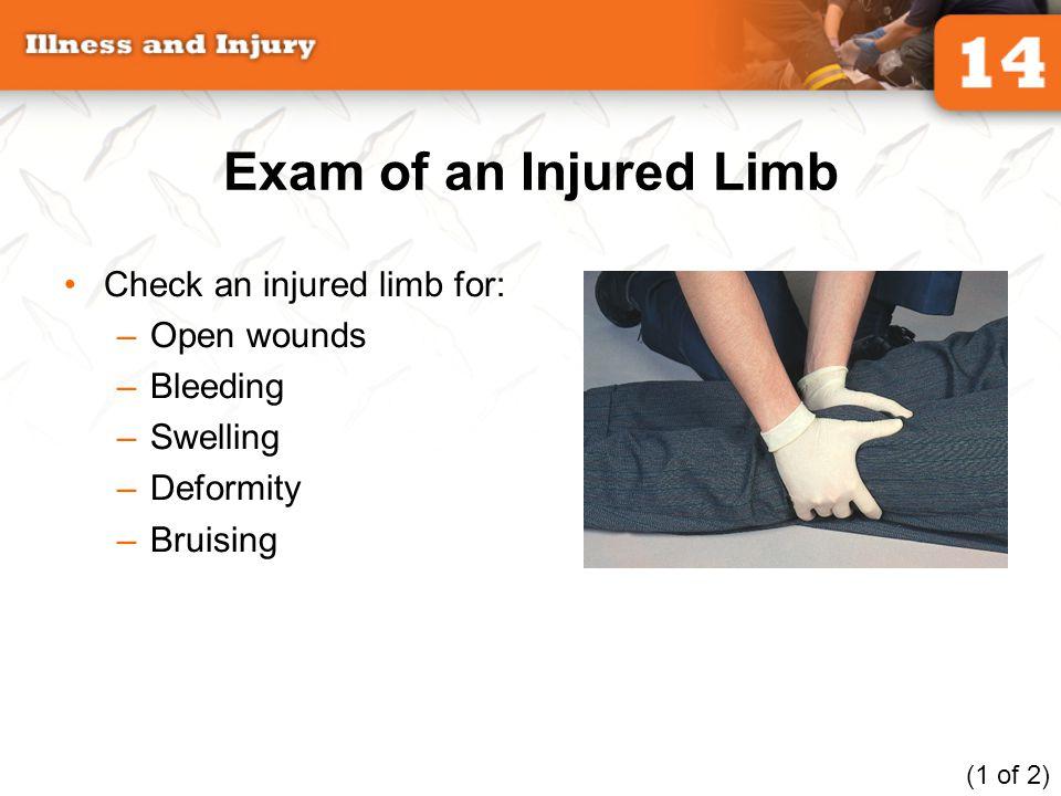 Exam of an Injured Limb Check an injured limb for: Open wounds