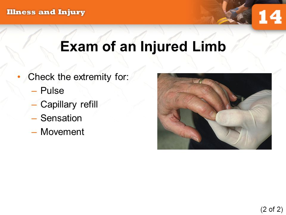 Exam of an Injured Limb Check the extremity for: Pulse