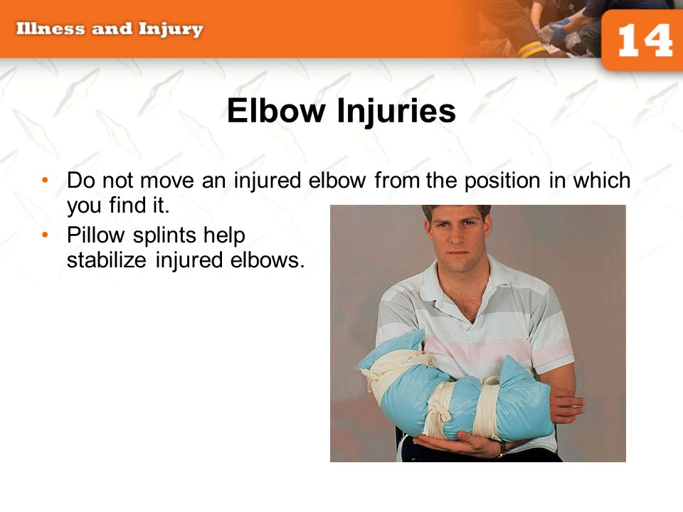 Elbow Injuries Do not move an injured elbow from the position in which you find it.
