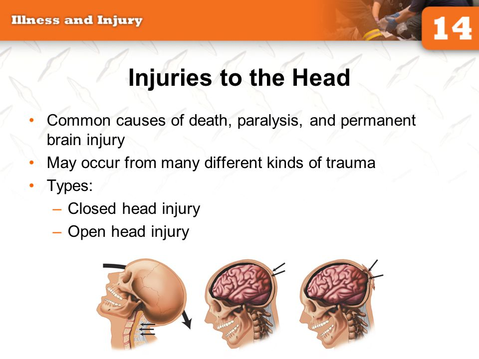 Injuries to the Head Common causes of death, paralysis, and permanent brain injury. May occur from many different kinds of trauma.