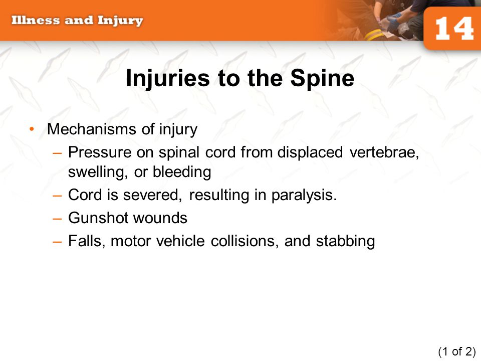 Injuries to the Spine Mechanisms of injury