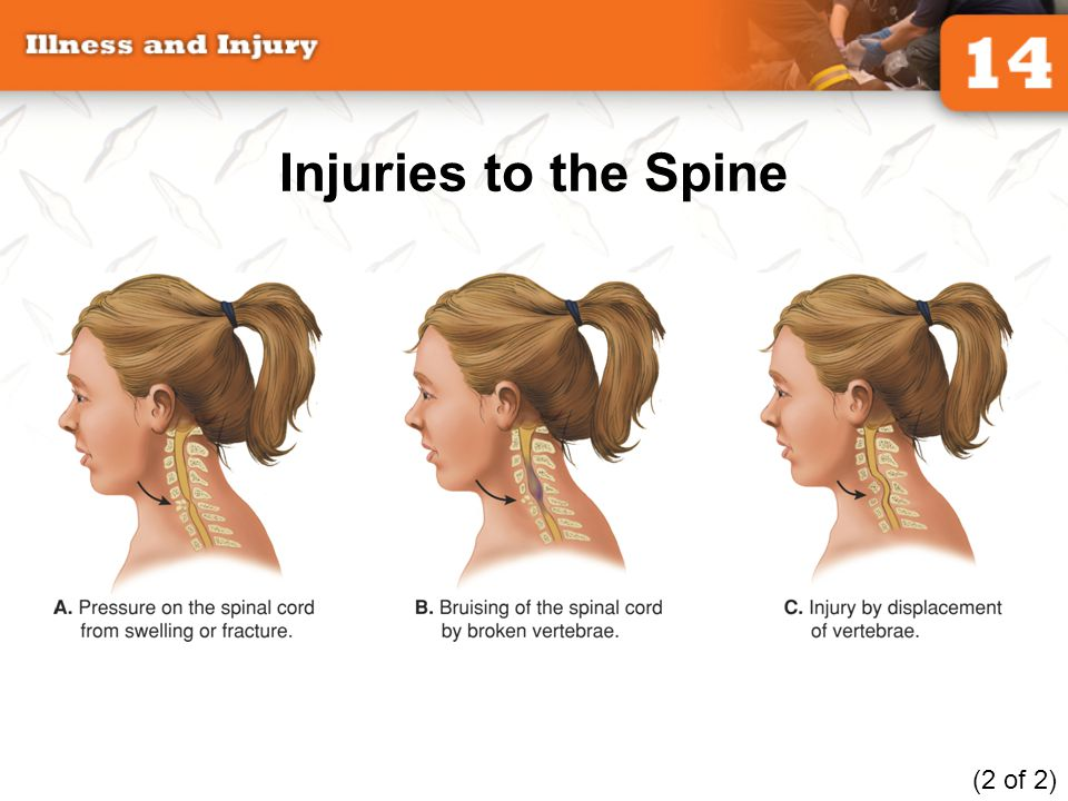 Injuries to the Spine (2 of 2)