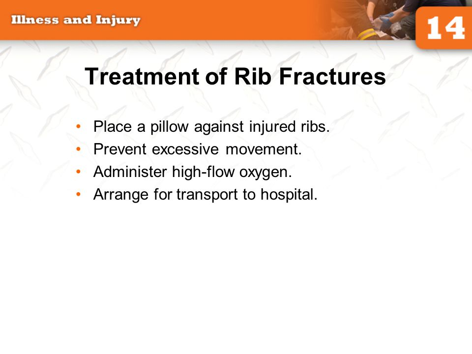 Treatment of Rib Fractures