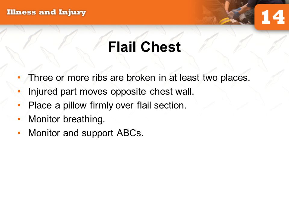 Flail Chest Three or more ribs are broken in at least two places.