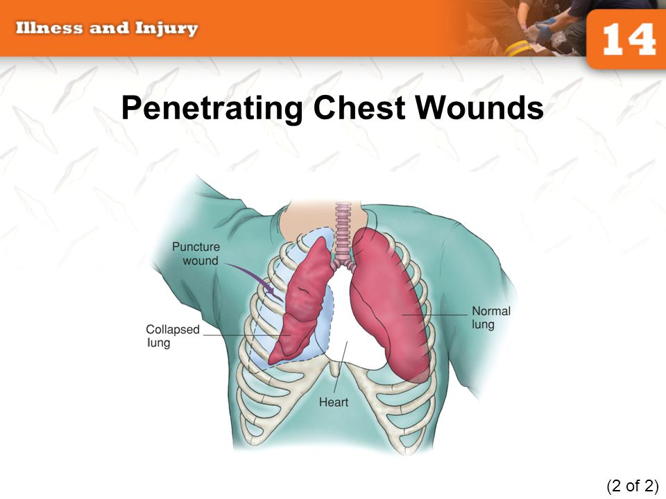 Penetrating Chest Wounds
