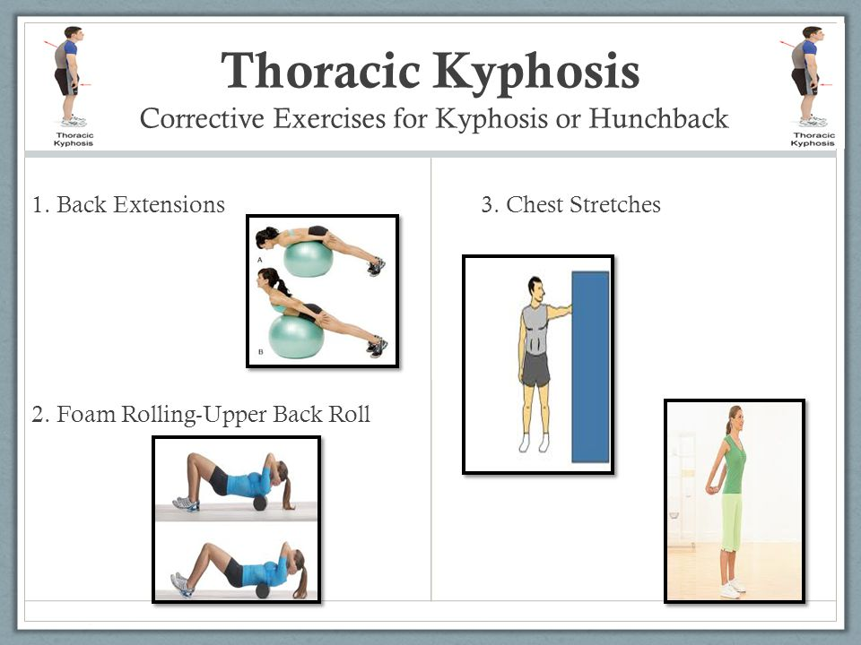 Thoracic Kyphosis Corrective Exercises for Kyphosis or Hunchback