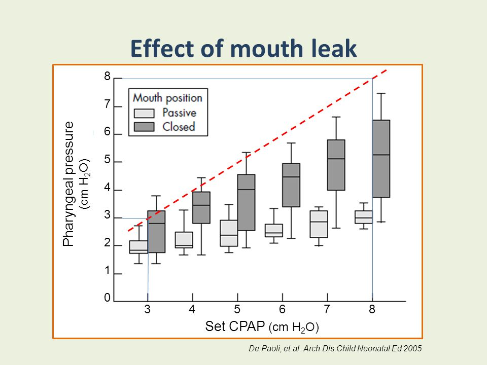 Effect of mouth leak Pharyngeal pressure Set CPAP (cm H2O) 8 7 6 5 4 3