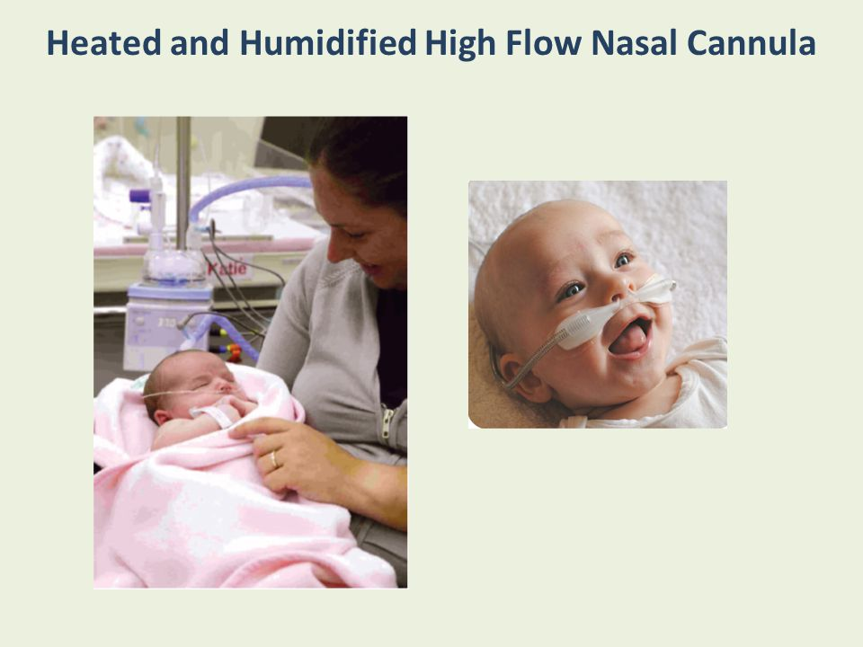Heated and Humidified High Flow Nasal Cannula