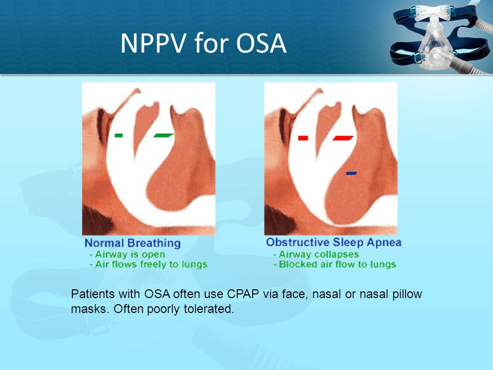 NPPV for OSA Patients with OSA often use CPAP via face, nasal or nasal pillow masks.